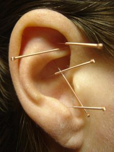 ear acupuncture copyright herve bessieres www.balance4health.co.uk