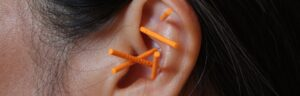"""NADA protocol involves the gentle insertion of up to five fine, single use, steralised, stainless steel disposable needles into specific energetic points in the outer ear. The five ear points: (1) Sympathetic – calms the nervous system and helps with overall relaxation. (2) Shen Men / """"Spirit Gate"""" – reduces anxiety and nervousness. (3) Kidney Point – for calming fears and healing internal organs. (4) Liver Point – for detoxification, blood purification, and to quell aggression. (5) Lung Point – promotes aeration and helps clients let go of grief. The outer ear acts like a switchboard that sends impulses to the brain, which stimulate the release of endorphins, lowers stress and induces relaxation. The NADA-system is most suited to group settings. An NADA Practioner will insert up to five needles in each ear for up to 45 minutes while clients sit in a relaxed atmosphere. During this time the client may fall asleep, experience a meditative state or just feel calm and relaxed. ln the 1970's the NADA protocol was developed to help addicts with their recovery dealing with trauma, anxiety, depression, irritability and cravings. Since then NADA protocol has been found effective for a wide range of conditions. The NADA protocol works best when used in combination within a comprehensive treatment programme that offers other therapeutic elementsnada ear acupuncture with adraina pop at chelsea natural health"""