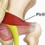 piriformis syndrome